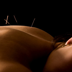 Acupuncture helps in many ways